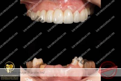 case12 - بازسازی لبخند