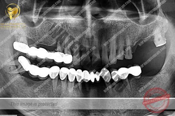 case16 - رادیوگرافی ایمپلنت