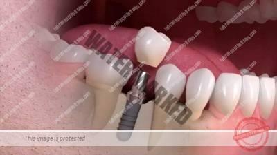 1 - ایمپلنت دندان چیست و چگونه کار گذاشته می شود؟