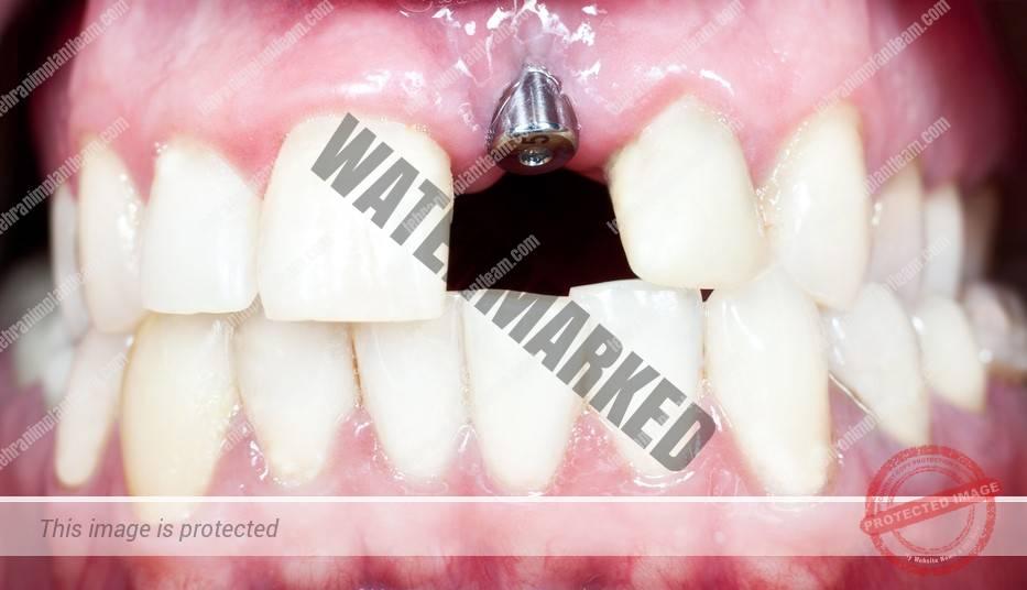 جراحی کاشت ایمپلنت دندان