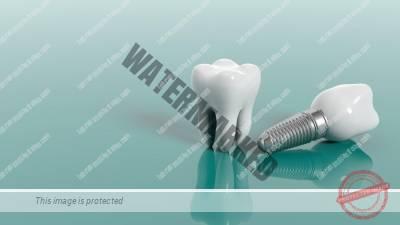 18 1 - مراقبت بعد از کاشت ایمپلنت دندان