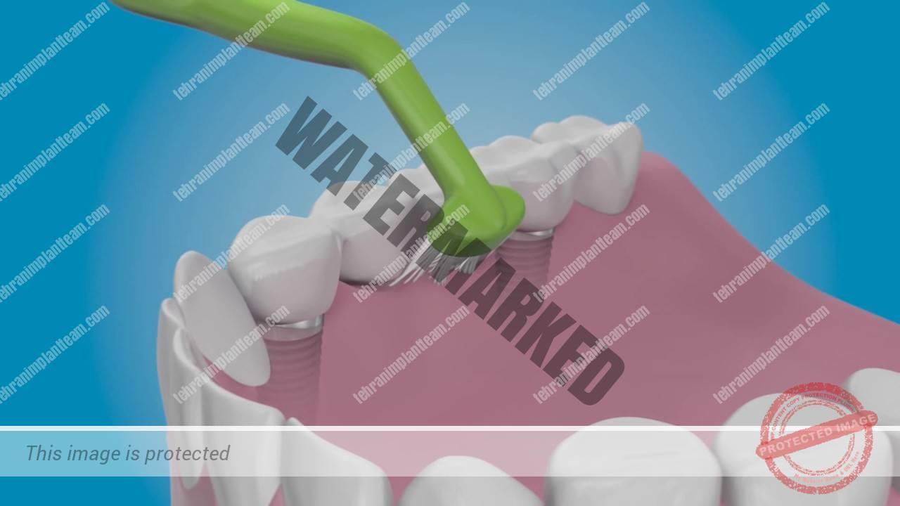 مراقبت بعد از کاشت ایمپلنت دندان