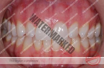 4 - اصول مراقبت از لثه و دندانها