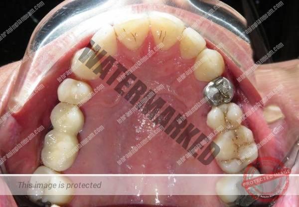 photo 2020 04 23 12 35 04 - کاشت دندان