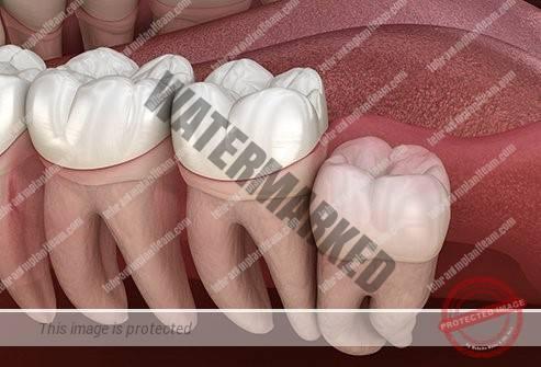 4 1 - کشیدن دندان های عقل و سلامت دندان