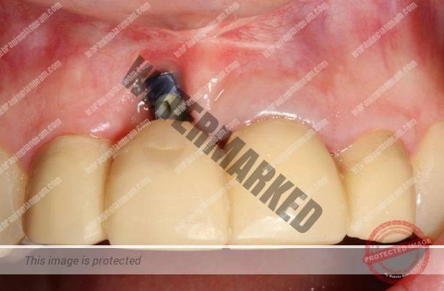 4 - آیا امکان کاشت ایمپلنت دندان با وجود بیماری لثه فراهم است؟