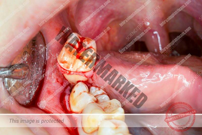 کشیدن دندان های عقل و سلامت دندان