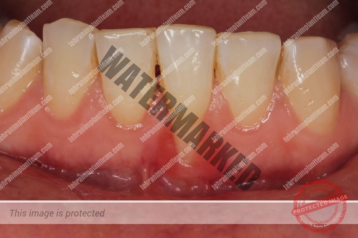 کاشت ایمپلنت دندان با وجود بیماری لثه