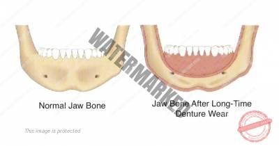 4 1 - تحلیل استخوان فک