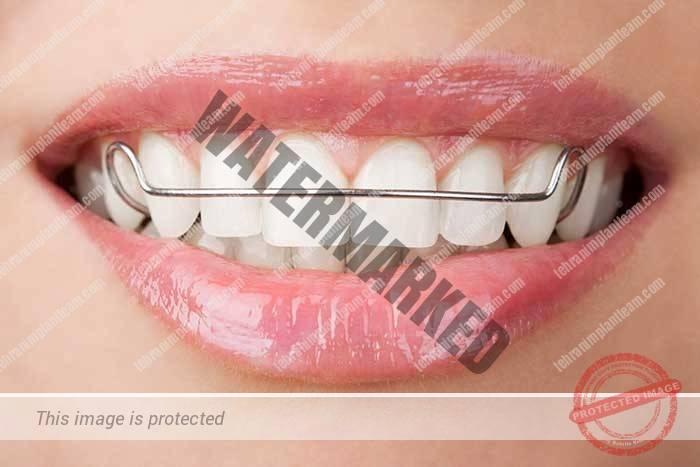 دندان مصنوعی فلیپر یا تکه ای