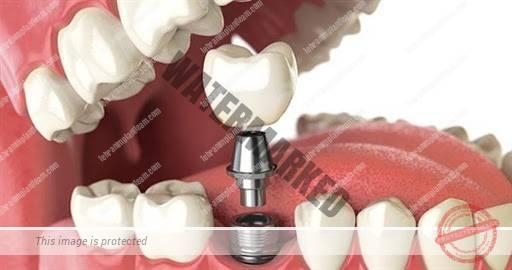 15 1 - ایمپلنت دیجیتال دندان چیست و چه مزایایی دارد؟