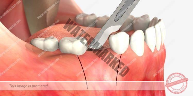 16 - اقدامات لازم قبل از جراحی لثه