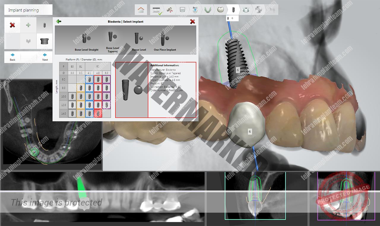 ایمپلنت دندان دیجیتالی