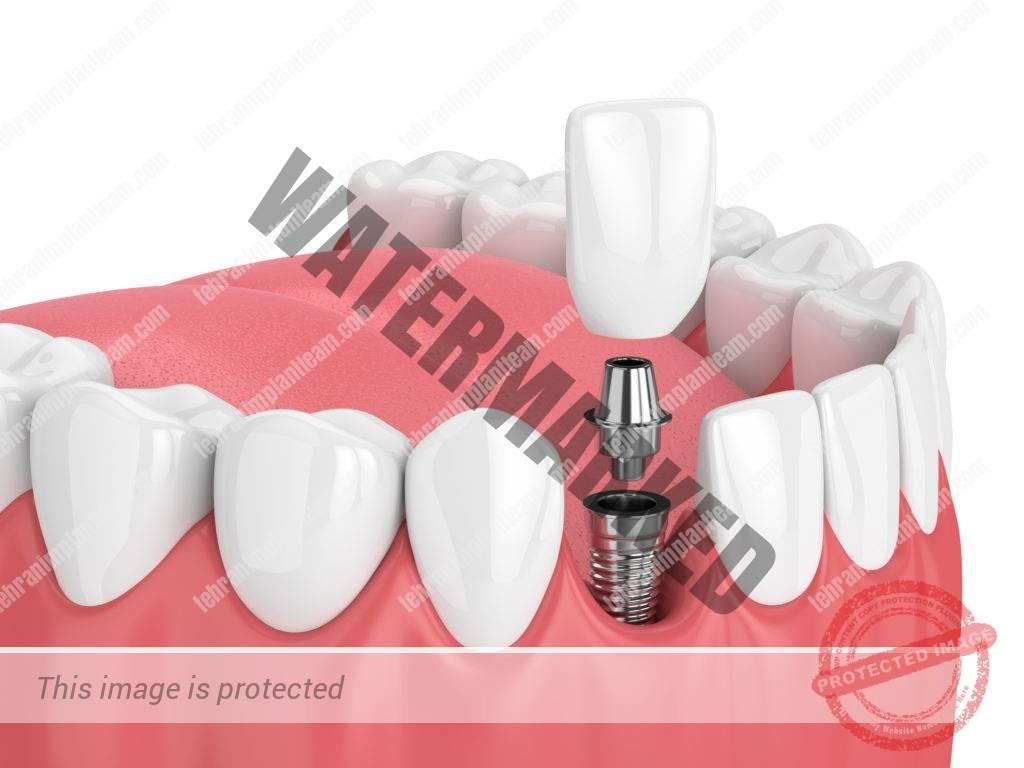 15 - انواع ایمپلنت های دندانی