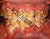 10 - عوارض بیماری های لثه