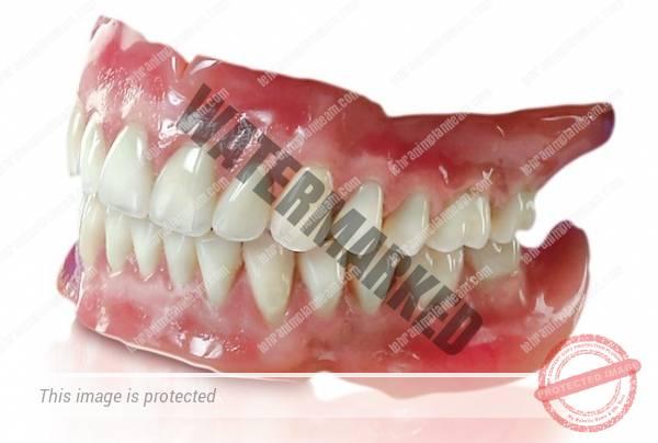 ایمپلنت یا دندان مصنوعی