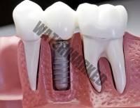 30 - آیا ایمپلنت دندان درد دارد؟