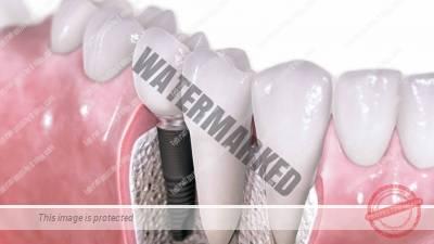 1 - کاشت ایمپلنت دندانی برای بیماران دیابتی