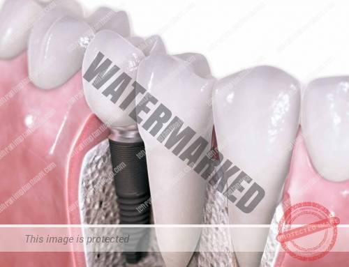 کاشت ایمپلنت دندانی برای بیماران دیابتی
