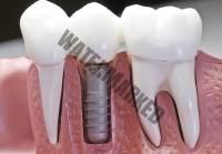22 - ایمپلنت دندان بعد از رادیوتراپی