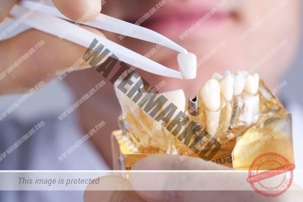 ایمپلنت دندان بعد از رادیوتراپی