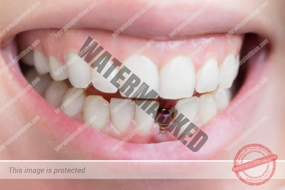 31 - بهترین زمان کاشت ایمپلنت پس از کشیدن دندان