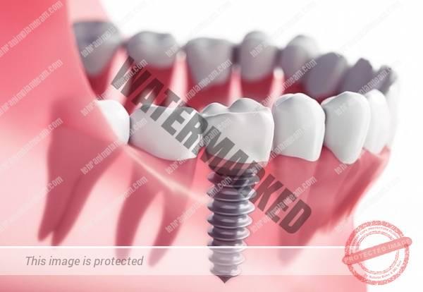 بهترین زمان کاشت ایمپلنت پس از کشیدن دندان