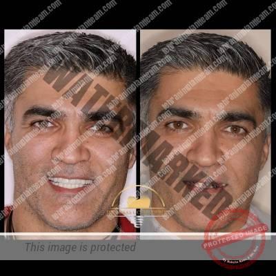 4ffa41c3 40b8 4f5f 89b4 0fa1e1351346 - باز سازی کامل دهان