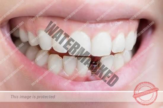 کاشت ایمپلنت دندان در بارداری