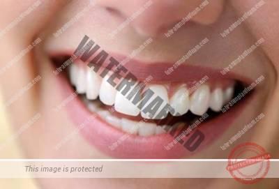 11 1 - افزایش طول تاج دندان به چه معناست؟
