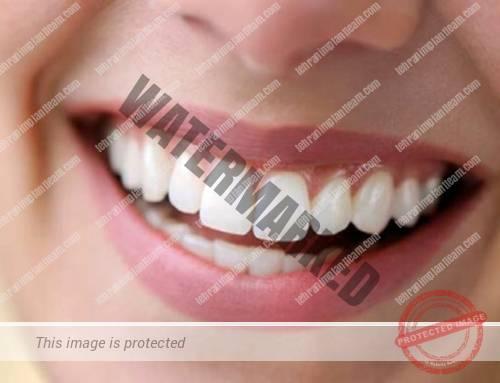 افزایش طول تاج دندان به چه معناست؟