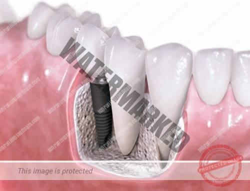 آیا کاشت ایمپلنت دندان در دوران بارداری نیز قابل انجام است؟