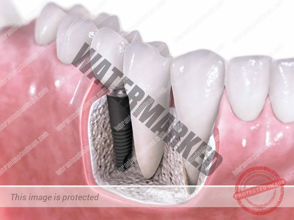 9 - آیا کاشت ایمپلنت دندان در دوران بارداری نیز قابل انجام است؟