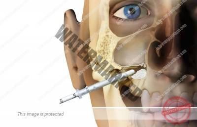 7 - جراحی لیفت سینوس و راهنمای کامل آن