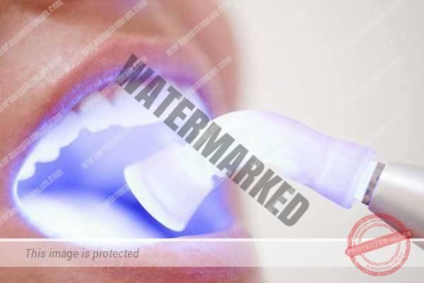 1 - انواع لیزر در دندانپزشکی و کاربرد آن ها