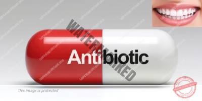 4 - درمان بیماری لثه با آنتی بیوتیک ها