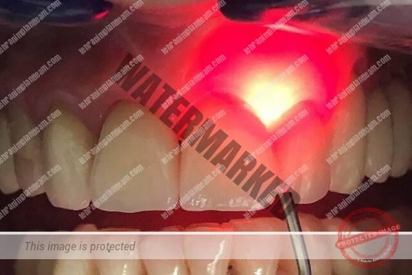 لیزر در دندانپزشکی