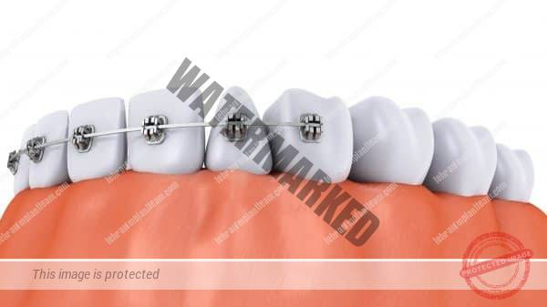 اول ایمپلنت دندان یا ارتودنسی