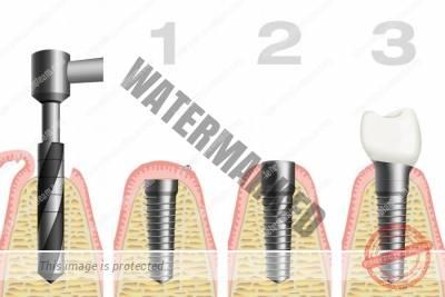 7 - لق شدن ایمپلنت دندان | دلایل و روش های پیشگیری