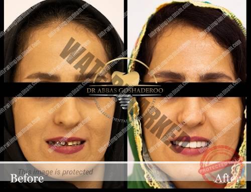 بازسازی طرح لبخند بیمار