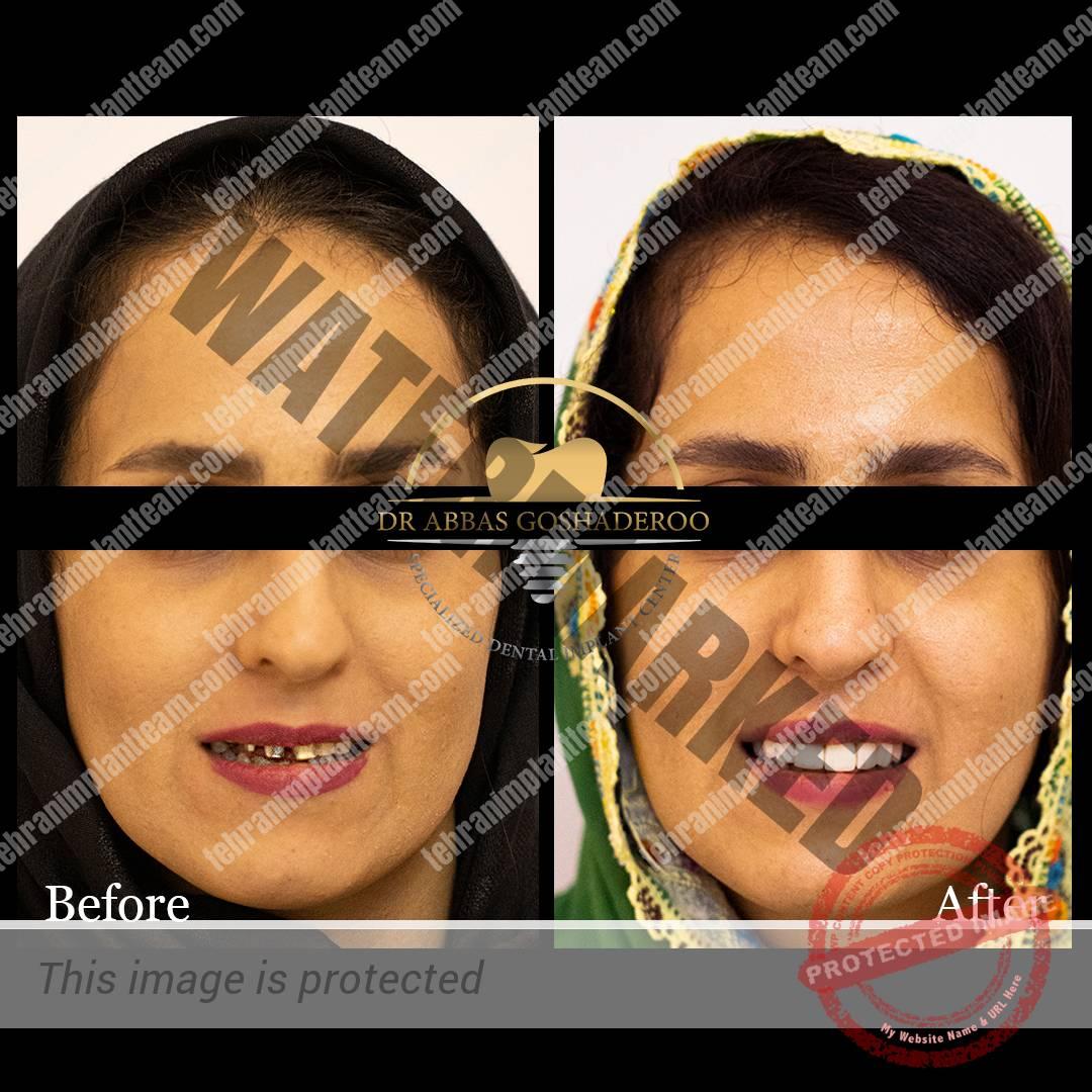 regam1 - بازسازی طرح لبخند بیمار