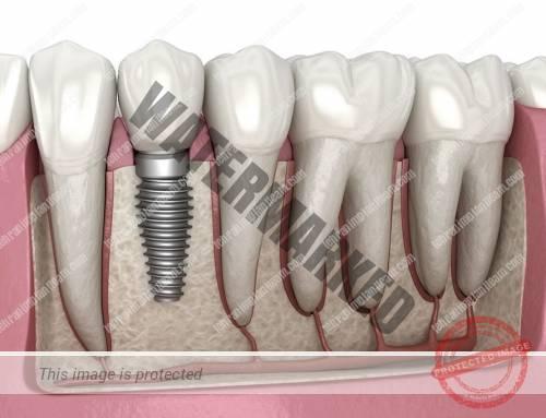 عادت های نادرست در طول مدت کاشت ایمپلنت های دندانی