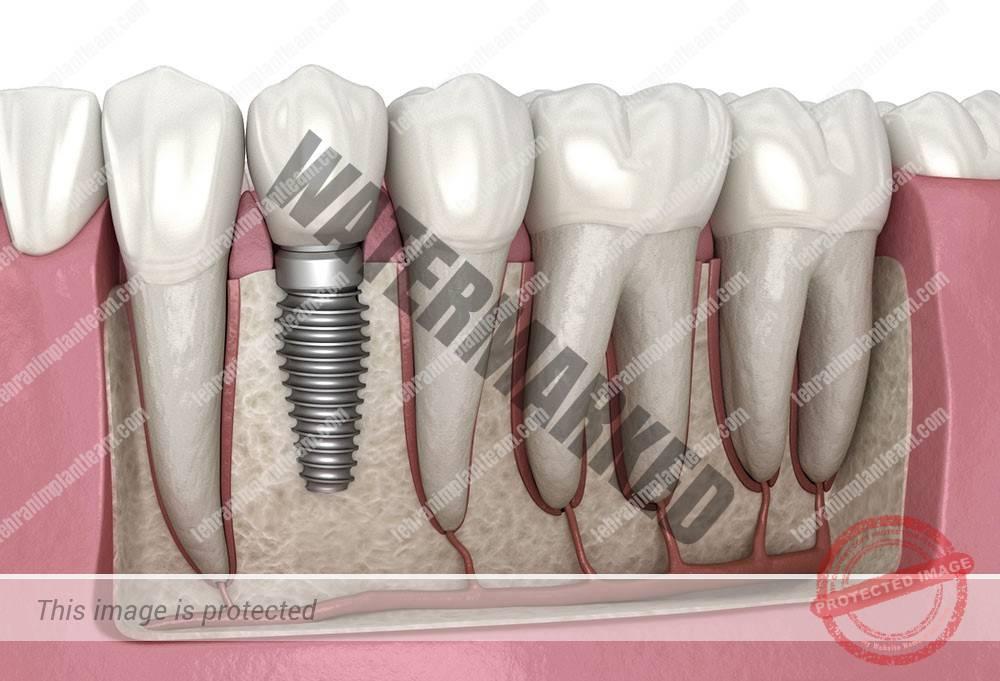 1 - عادت های نادرست در طول مدت کاشت ایمپلنت های دندانی